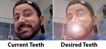 Dave Teeth