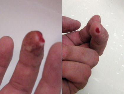 Dave's finger is healing... wound is much smaller now!