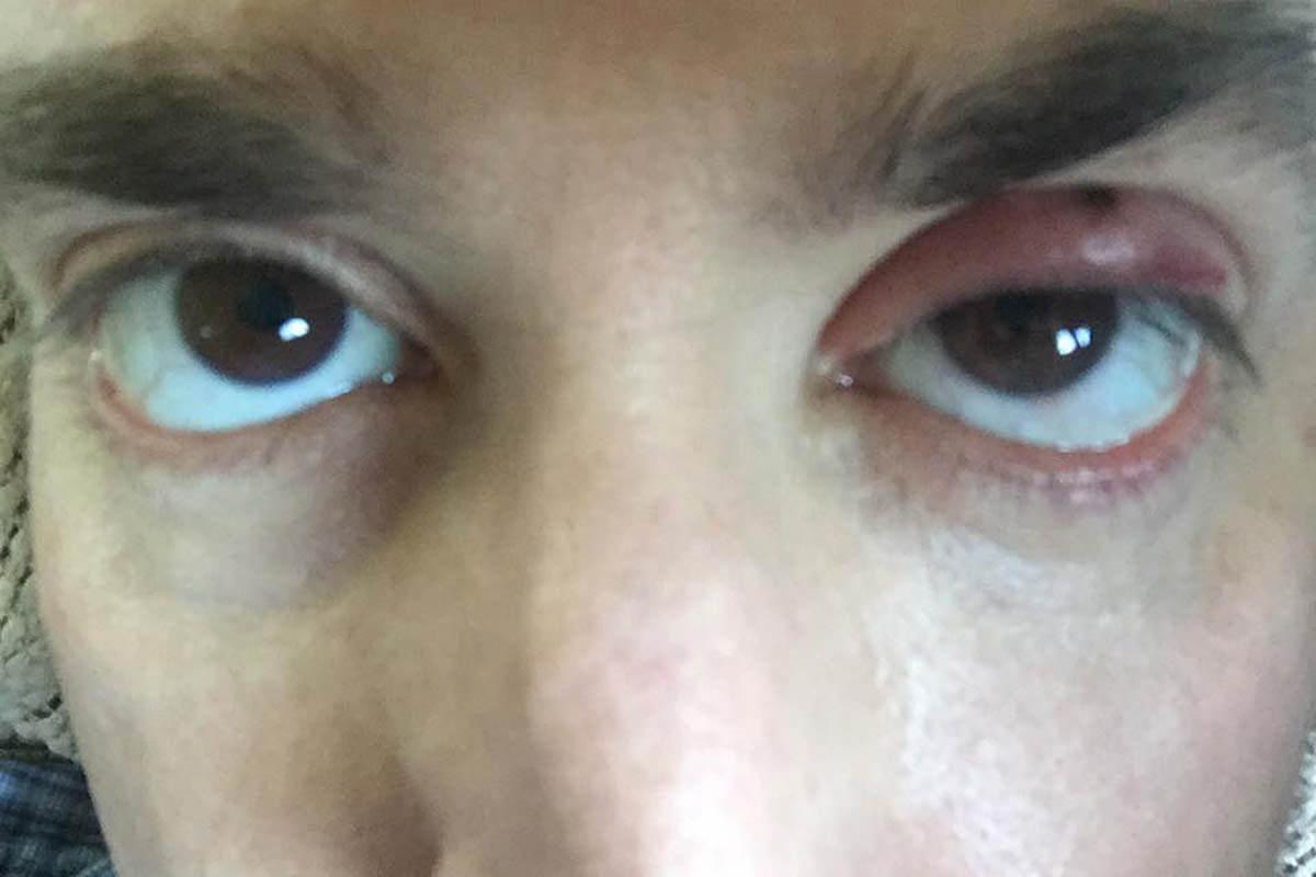 Dave Eyes